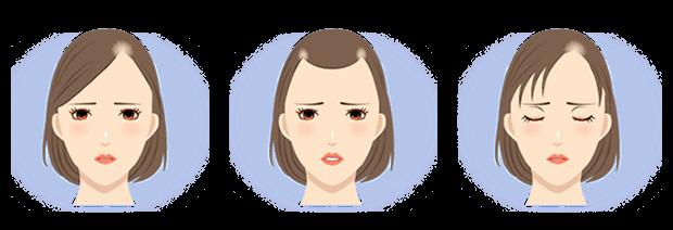 女性の「生え際」の悩み