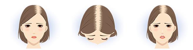 女性の「分け目」薄毛
