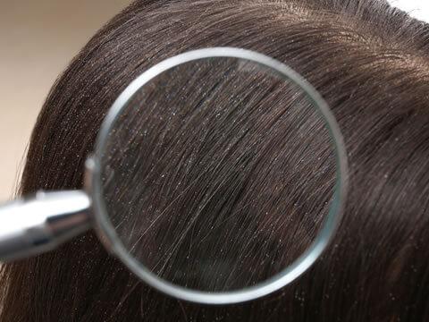 【医師監修】抜け毛と毛根の関係性について