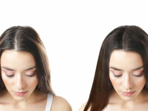 女性の薄毛への対処法「自毛植毛」の特徴3つ