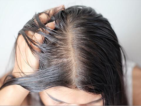 【医師監修】女性の頭頂部の薄毛の原因と改善策