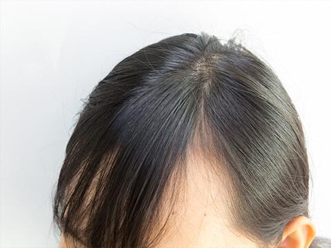 【医師監修】前髪が薄い女性向けの対策と目立たないヘアスタイル